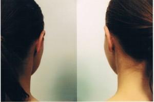 Po zabiegu korekcji uszu