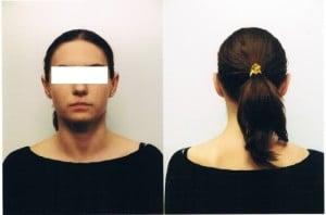Zabieg plastyki odstających uszu