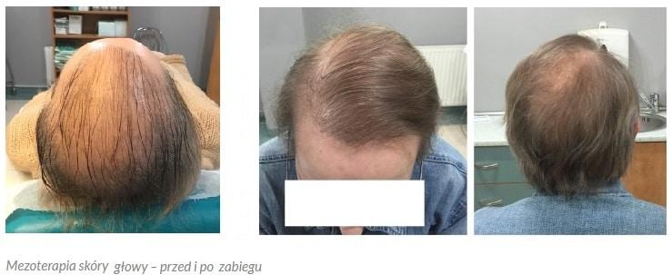 Wypadanie włosów - terpia prp