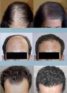 Przeszczep włosów metodą safer