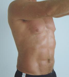 Liposukcja tors po