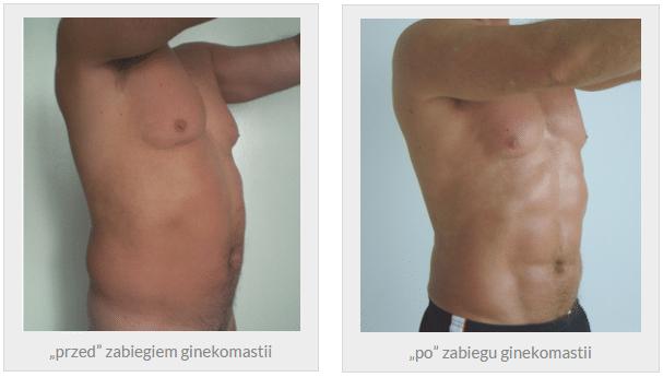 liposukcja ultradźwiękami vaser lipo